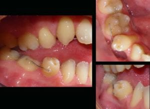 Be aware of old retainers - Kevin O'Brien's Orthodontic Blog