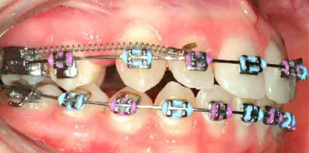 ما هو الأسرع لإغلاق الفراغ نوابض Ni Ti أم المطاط السلسلي Kevin O Brien S Orthodontic Blog