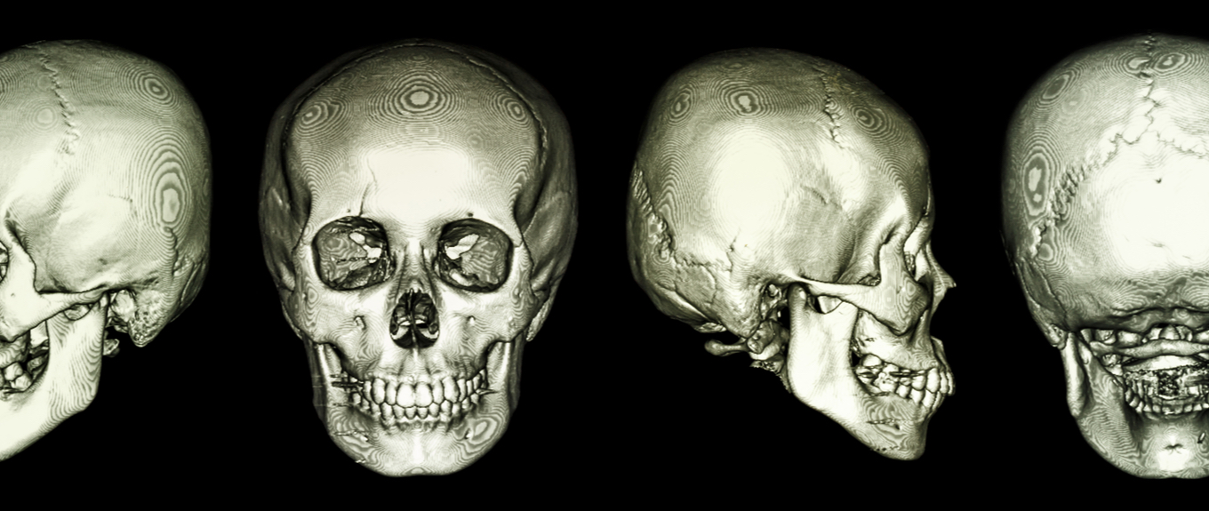 A closer look at Maxillary Skeletal Expansion (MSE).